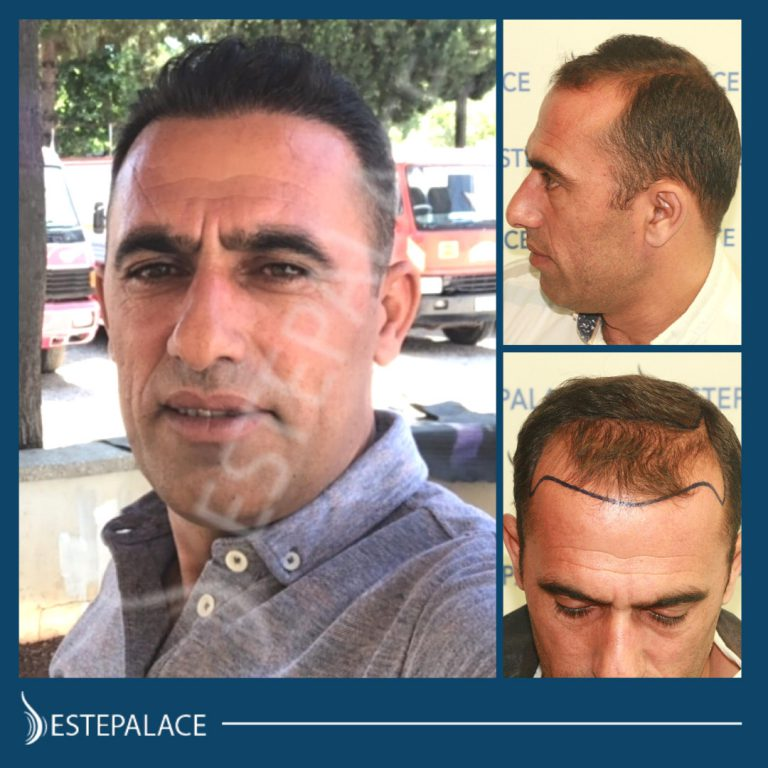 before and after hair transplant surgery at Estepalace center