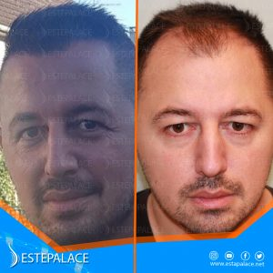 before after 11