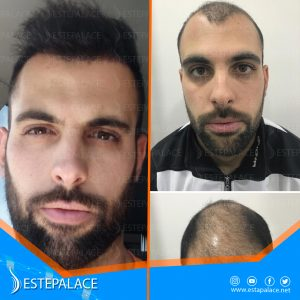 before after 12