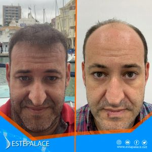 before after 13