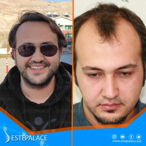 before after 21