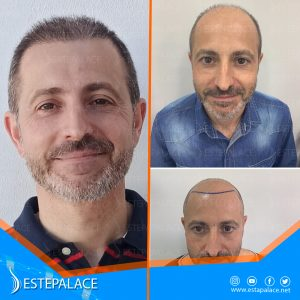 before after 24