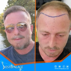 before after 25