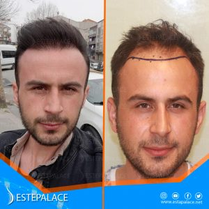 before after 27