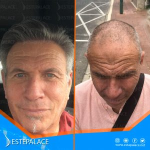 before after 29