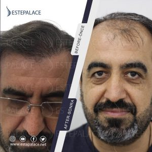 before after 62 - Copy