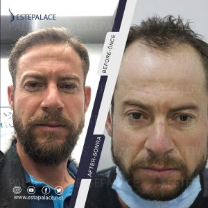 before after 64 - Copy