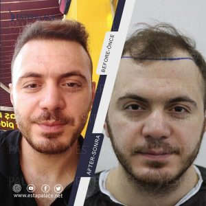 before after 71 - Copy