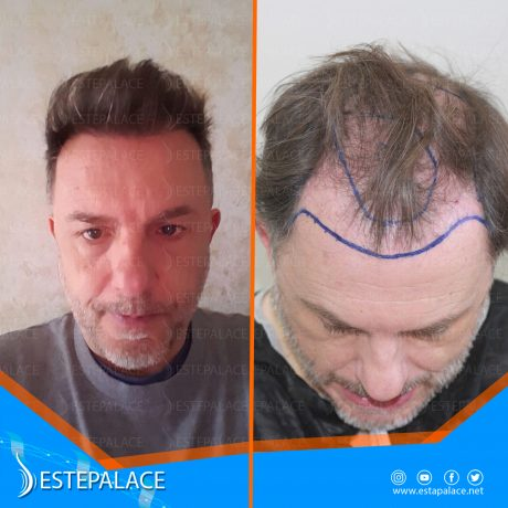 before after 2